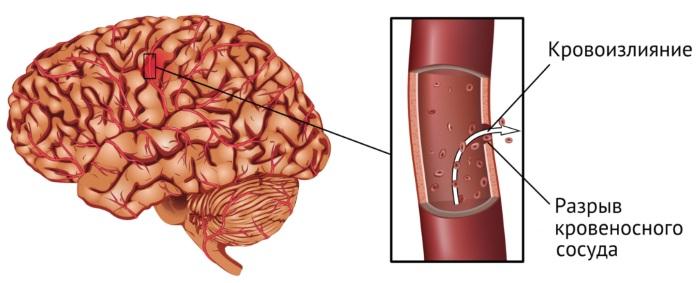 Менингит. Симптомы у взрослых, как распознать, признаки, причины возникновение, анализы, лечение