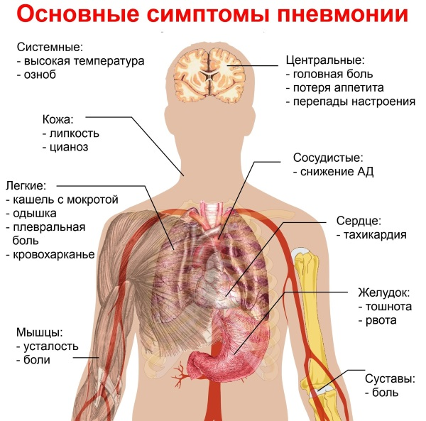 Опоясывающий герпес. Симптомы и лечение, народные средства, препараты антибиотики