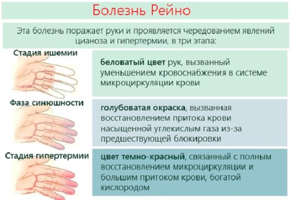 Покалывание в руках как иголки во время сна, зуд, температура, при беременности, остеохондрозе. Причина, лечение