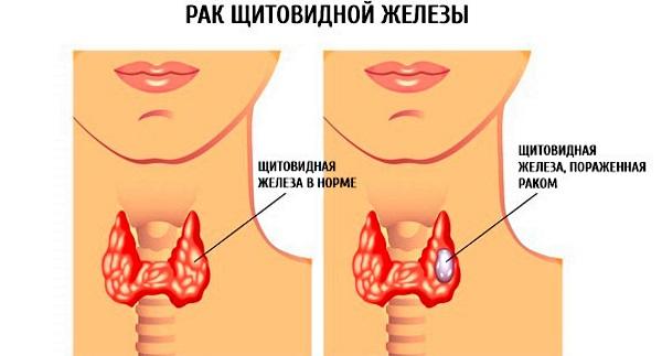 Проблемы с щитовидной железой у женщин и мужчин. Симптомы и лечение