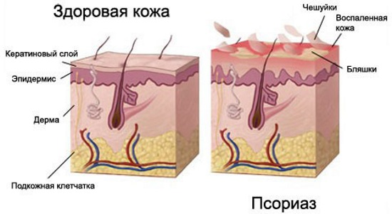 Псориаз. Что это за болезнь, фото, стадии, сухая кожа на лице, голове, теле. Лечение препараты, инъекции, народными средствами