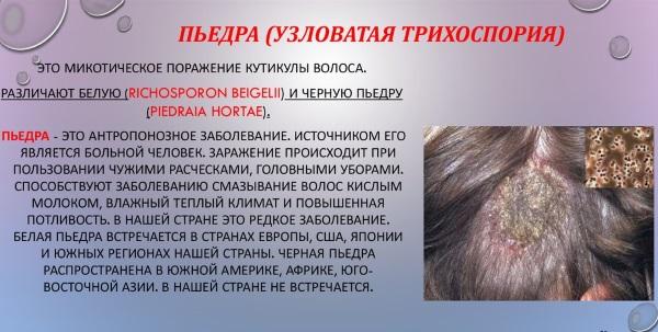 Разновидности лишая у человека. Фото, описание, симптомы и лечение