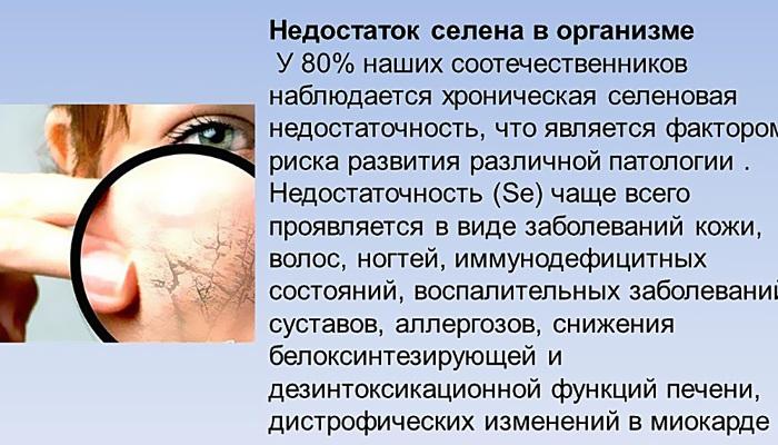 Селцинк плюс. Инструкция по применению при выпадении волос, аналоги, отзывы