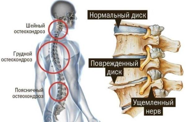 Шейный остеохондроз у женщин. Признаки, симптомы и лечение, гимнастика, медикаменты
