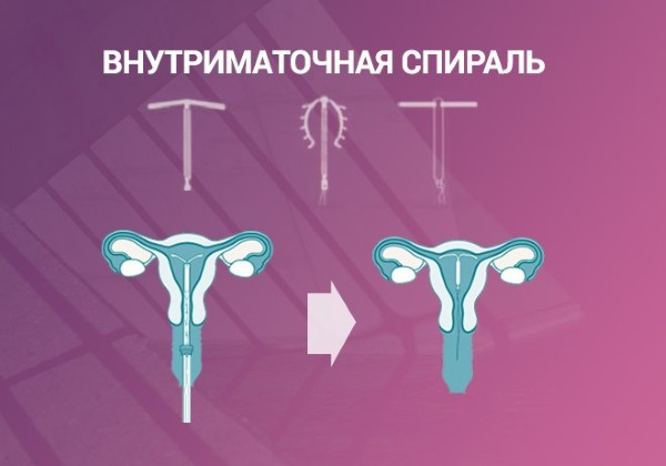 Таблетки от беременности после незащищенного акта. Названия, цены, как принимать
