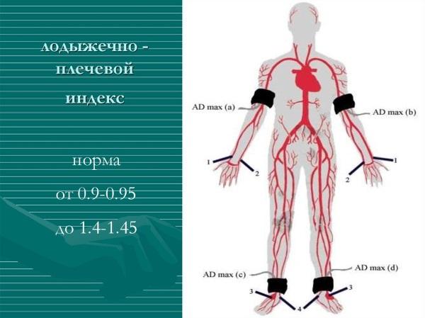 УЗДГ вен нижних конечностей. Что это, подготовка к процедуре, где сделать, цены в Москве