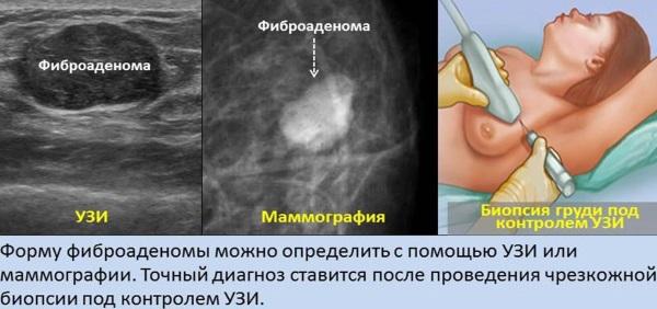 УЗИ молочных желез или маммография. Что лучше, точнее, эффективнее. Отличия, можно ли делать в один день