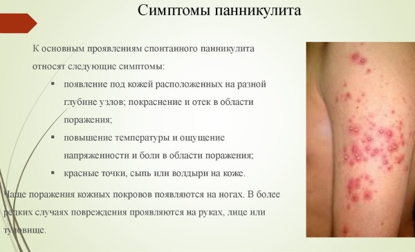 Узловатая эритема. Симптомы, фото, причины, лечение, клинические рекомендации