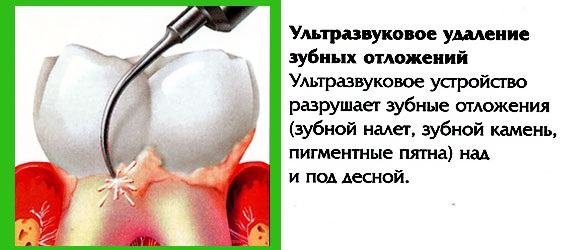 Влияние ультразвука на организм человека. Диагностика аппаратами физиотерапии, косметологии