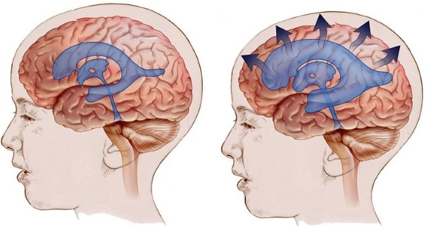 Внутричерепное давление. Симптомы у взрослых, как определить, причины и лечение