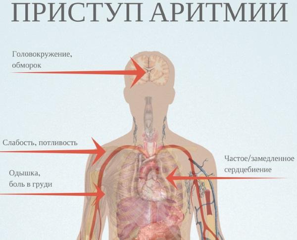 Аритмия сердца. Чем опасна, причины, симптомы, как лечить в домашних условиях