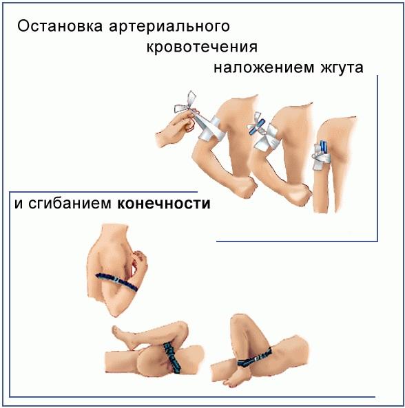 Артериальное кровотечение. Признаки, помощь, почему возникает, чем характеризуется. Советы врачей