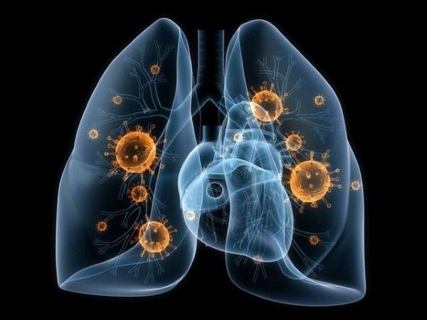 Биопарокс. Аналогичные препараты с антибиотиками для горла, носа, легких. Список, как принимать