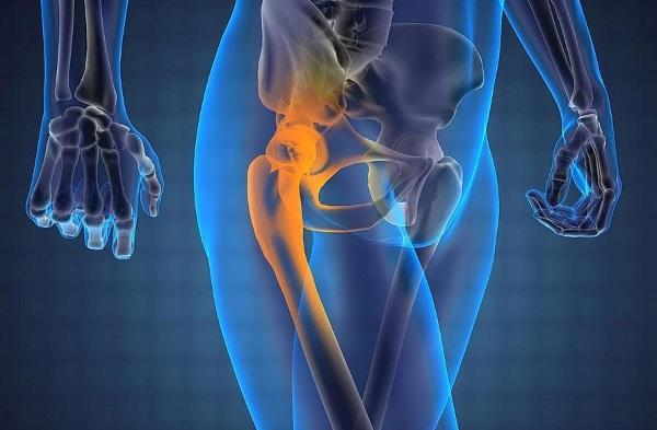 Боль в бедре, отдающая в ногу сильная, резкая, ноющая. Причины и лечение
