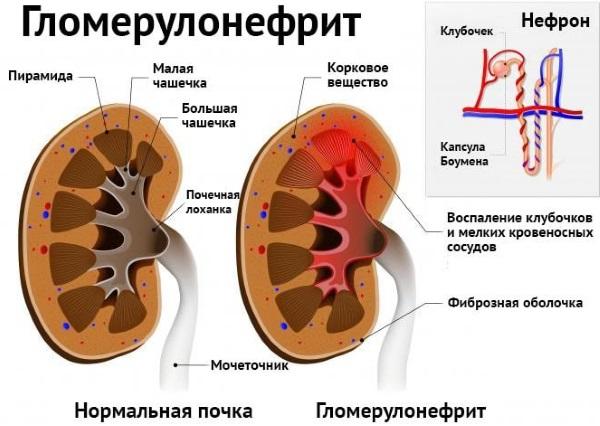 Болит почка с левой стороны. Что это может быть, причины, симптомы и лечение