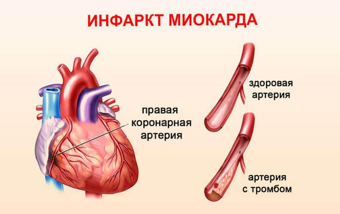 Болит подмышка слева, справа у женщин. Причины и как избавиться