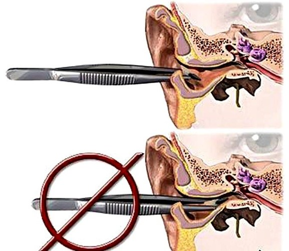 Болит ухо с одной стороны. Чем лечить: лекарства, антибиотики, капли