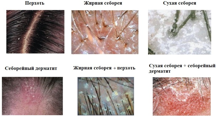 Болячки на голове в волосах. Фото, причины и лечение в домашних условиях