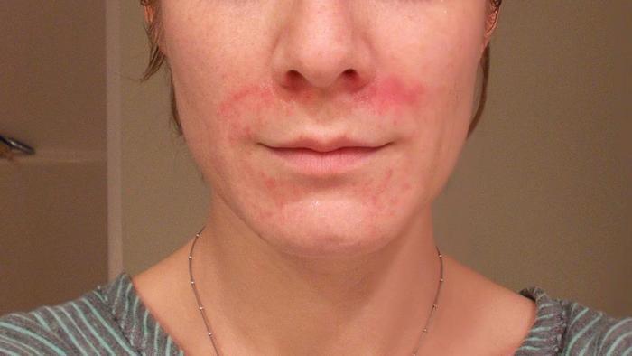 Дерматит на лице. Фото, симптомы, причины, лечение: мази, кремы, народные средства