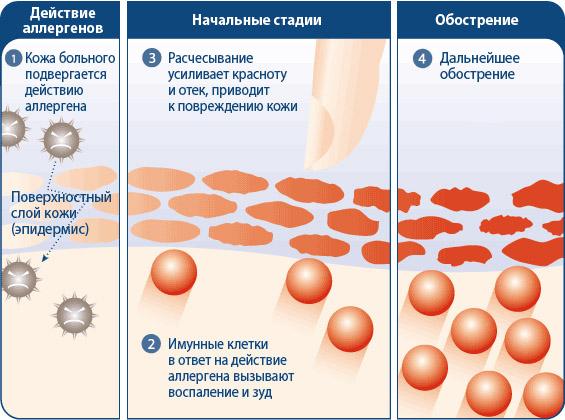 Маски от аллергического дерматита thumbnail