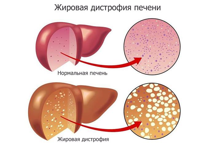 Диффузное изменение паренхимы печени и поджелудочной железы. Что это такое, лечение
