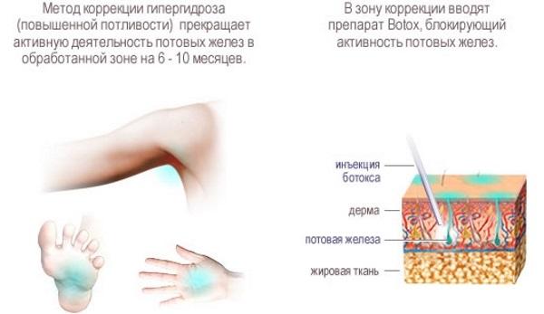 Лечение гипергидроза подмышек, ладоней, головы народными средствами, таблетками, ботулотоксином в домашних условиях