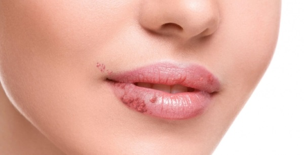 Хейлит на губах. Как лечить у взрослых и у детей. Народные средства, мази, лекарства