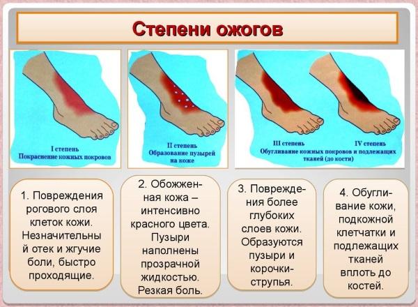 Химический ожог кожи. Препараты, народные средства лечения в домашних условиях