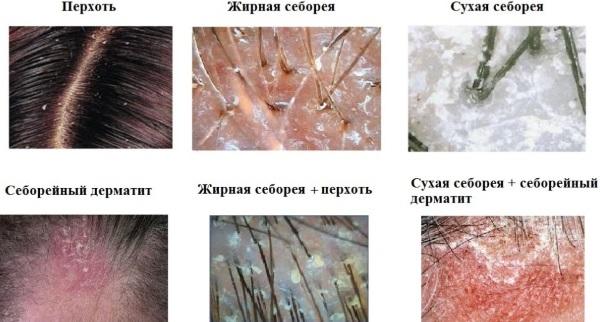 Корка на голове у взрослого. Как лечить перхоть под волосами, если кожа сухая, чешется
