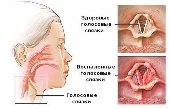 Ларинготрахеит у детей. Симптомы и лечение, клинические рекомендации