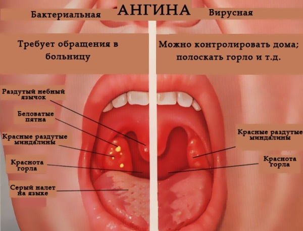 Ангина. Симптомы и лечение у взрослых, лекарства-антибиотики, народные средства