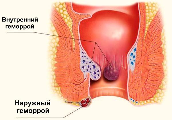 Лечение геморроя. Упражнения, свечи, народные и аптечные средства, диета в домашних условиях