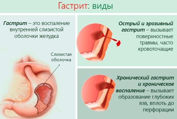 Бурление в животе. Причины у женщин, при беременности, после еды. Как избавиться, лечение