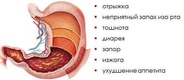 Лечение желудка народными средствами. Самые эффективные рецепты от эрозии, язвы, гастрита. Диета, очищение