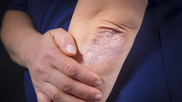 Розовый лишай Жибера: причина, симптомы, лечение