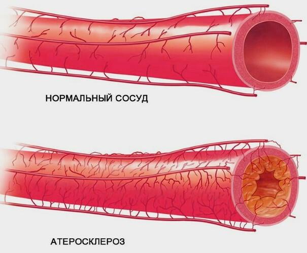 Настойка бобровой струи. Полезные свойства, приготовление, применение, от каких болезней