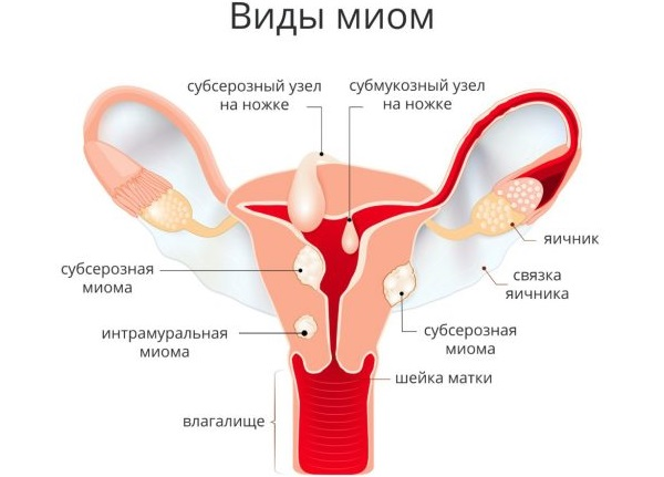 Почему нет месячных и нет беременности. Причины и что делать