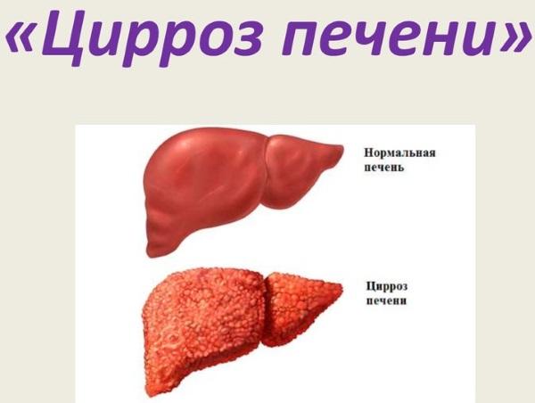 Низкие тромбоциты в крови. Причины и последствия у детей, взрослых, беременных. Лечение