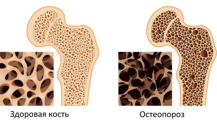 Остеопороз. Что это такое, причины, симптомы, как лечить