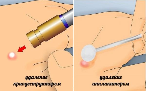 Папилломы под мышками. Причины и лечение, как вывести. Народные средства, лекарства