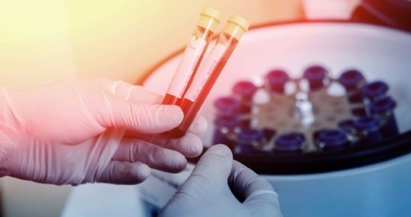 Что нужно знать об алт в анализе крови