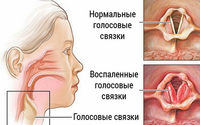 Пропадает голос. Причины, если горло не болит, как лечить
