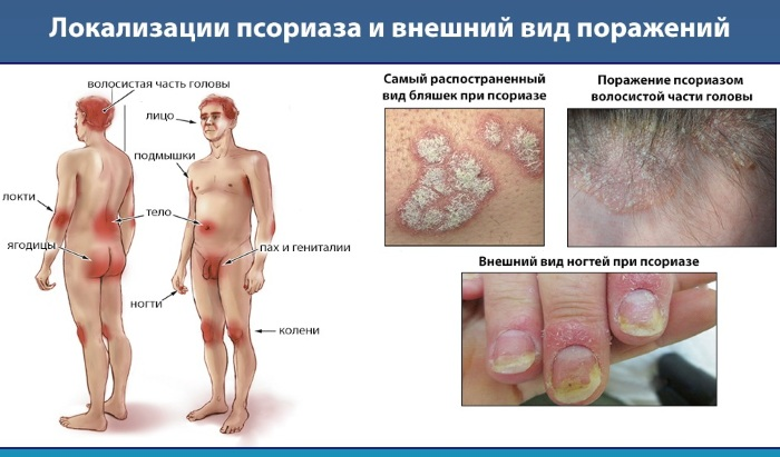 Лечение псориаза народными средствами в домашних условиях
