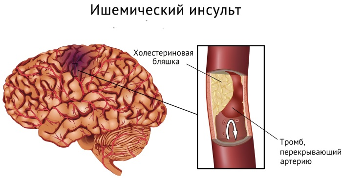 Ишемический инсульт. Последствия, неврология, лечение у взрослых, пожилых, детей, диагностика, восстановление