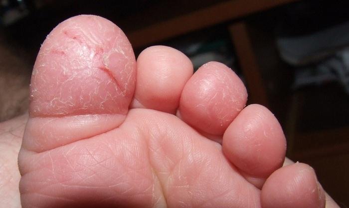 Средства от натоптышей и мозолей на ногах. Народные рецепты, препараты из аптеки