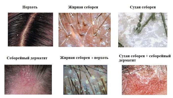 Средства для лечения себорейного дерматита кожи головы thumbnail