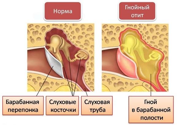 Стреляет в ухе с левой стороны. Причины и лечение, что делать, капли, компрессы, народные средства