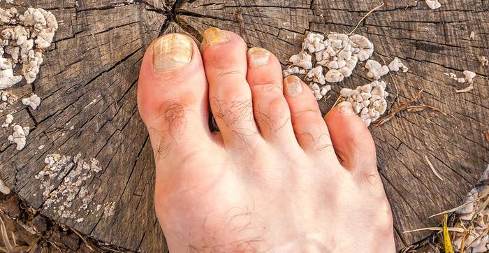 Сухие мозоли на мизинце ноги, подошве, стопе, пальце. Лечение народными средствами, мази