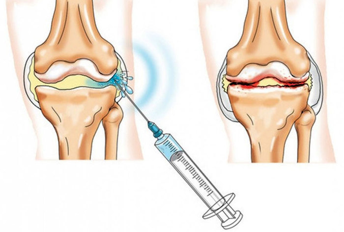 Уколы в коленный сустав при артрозе. Препараты, гиалуроновая кислота