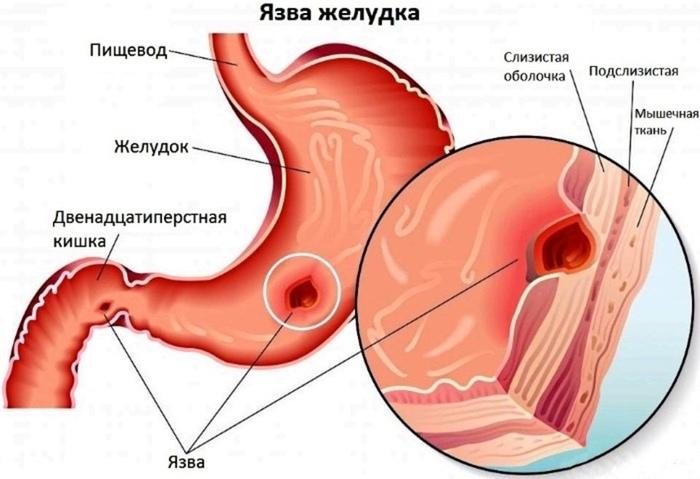 Как поднять ферритин в крови народными средствами, медикаментами при низком гемоглобине, беременности, онкологии